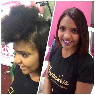 Tratamiento de Nanoplastia aplicando W-One en joven con pelo afro